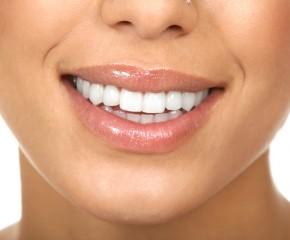Kaip natūraliai išbalinti dantis