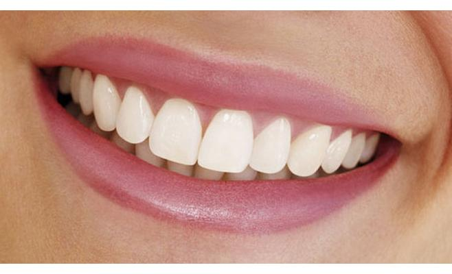Dantų implantai – pažangiausias sprendimas atstatyti prarastus dantis