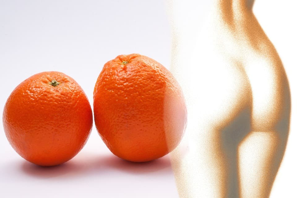"""Kaip atsikratyti """"apelsino žievelės"""": 5 veiksmingiausi kovos su celiulitu būdai"""